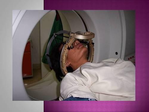 παρενέργειες ακτινοθεραπεία