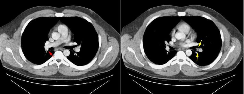 Lungcancer_Staging_normal hila