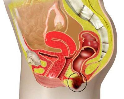 Καρκίνος πρωκτού αναίμακτη ίαση με ακτινο/χημειοθεραπεία