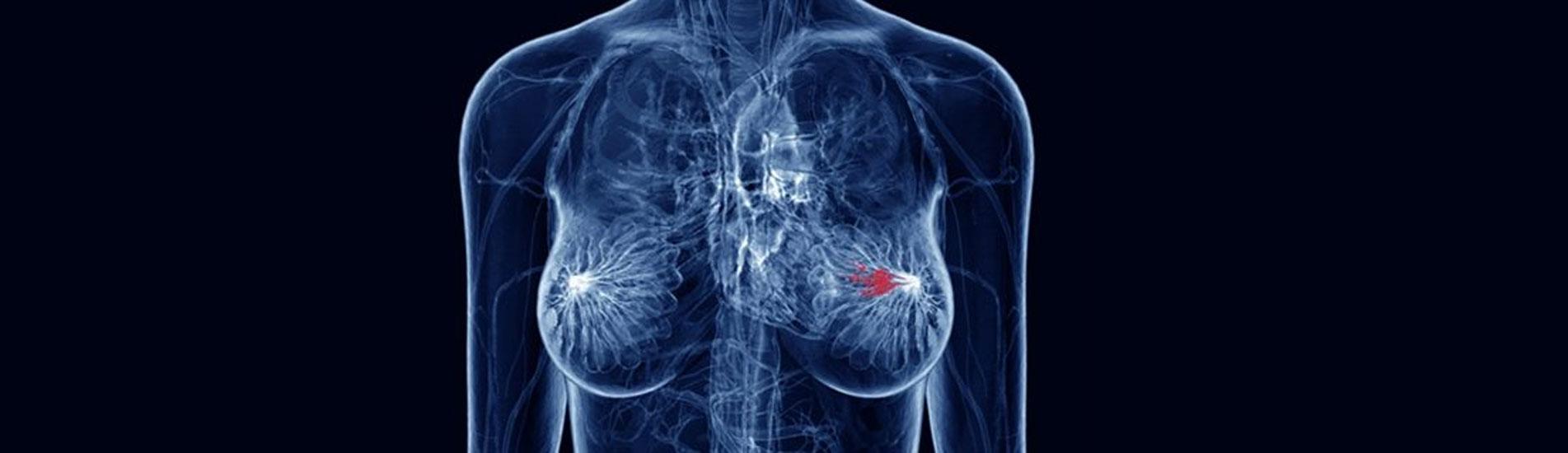 Ο ρόλος της Ακτινοθεραπείας στον Καρκίνο του Μαστού