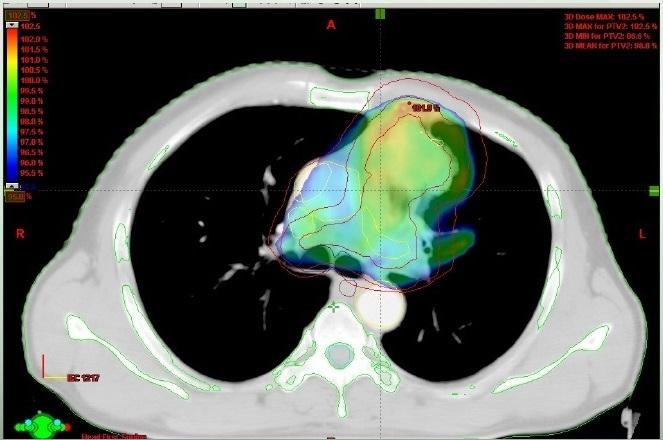 Η Σημασία της Ακτινοθεραπείας στον μη Μικροκυτταρικό Καρκίνο του Πνεύμονος
