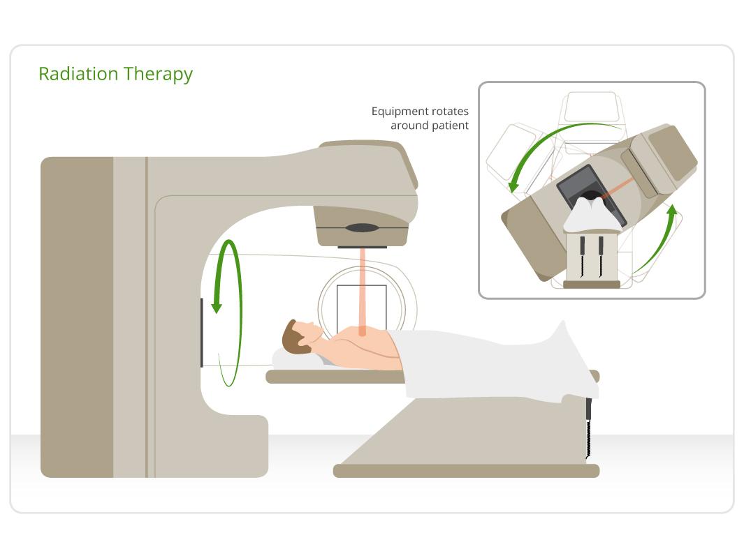 Η ακτινοθεραπεία πυλώνας στη θεραπεία του καρκίνου του πνεύμονα
