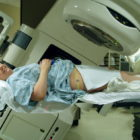 radiation therapy in cancer cervix